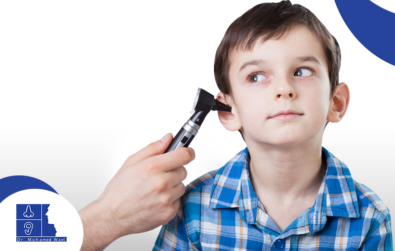 علاج العصب السمعي عند الاطفال
